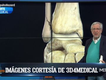 Nuestro traumatólogo, Pablo de Lucas, analiza la lesión de Hazard